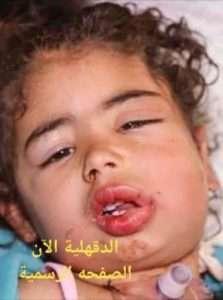 بالصور..إستغاثة لمساعدة طفلة تعاني من ورم سرطاني في الفم