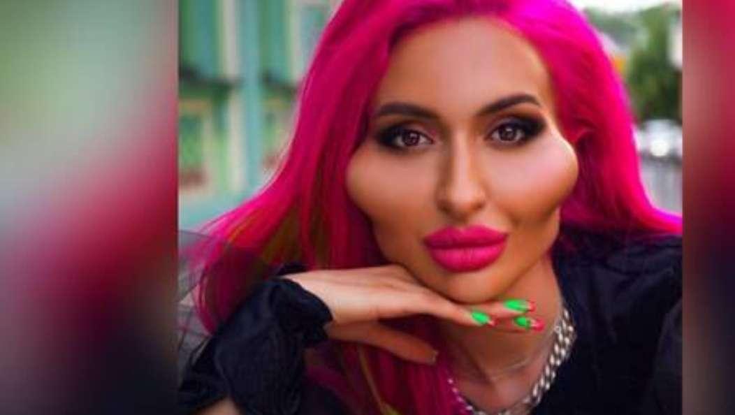 """بالصور.. عارضة أزياء أوكرانية تثير الجدل بـ""""أكبر وجنتين في العالم"""""""
