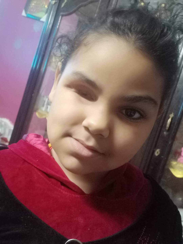تركها والدها تعاني سرطان في العين.. طفلة فقدت والدتها وعينها