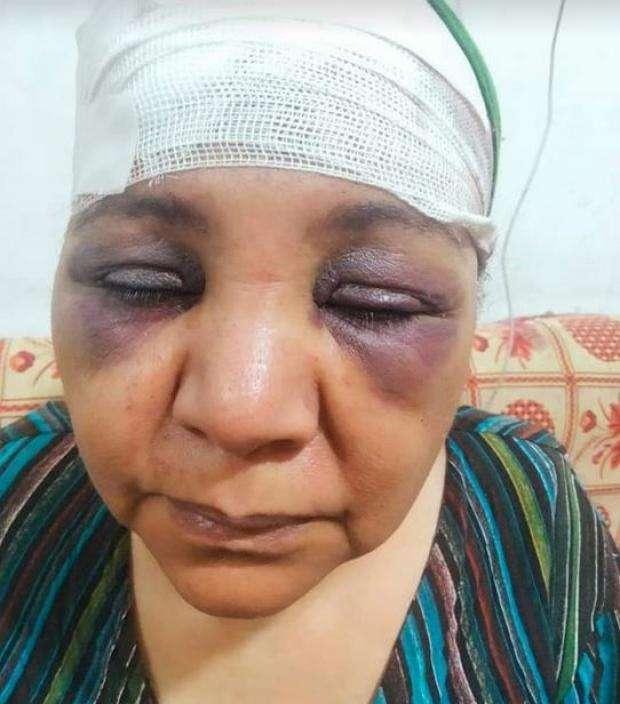 شاهد - سيدة خمسينية تتعرض للضرب والسحل من شقيق زوجها بالاقصر : اتفووه