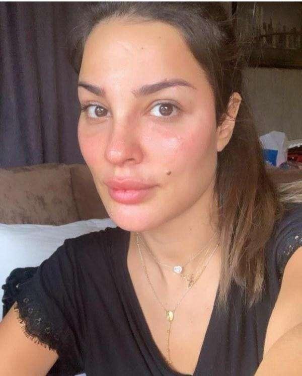شاهد - نادين نسيب نجيم قبل وبعد عمليات التجميل : العسل عسل من يومه